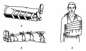 способы иммобилизации конечностей при переломах